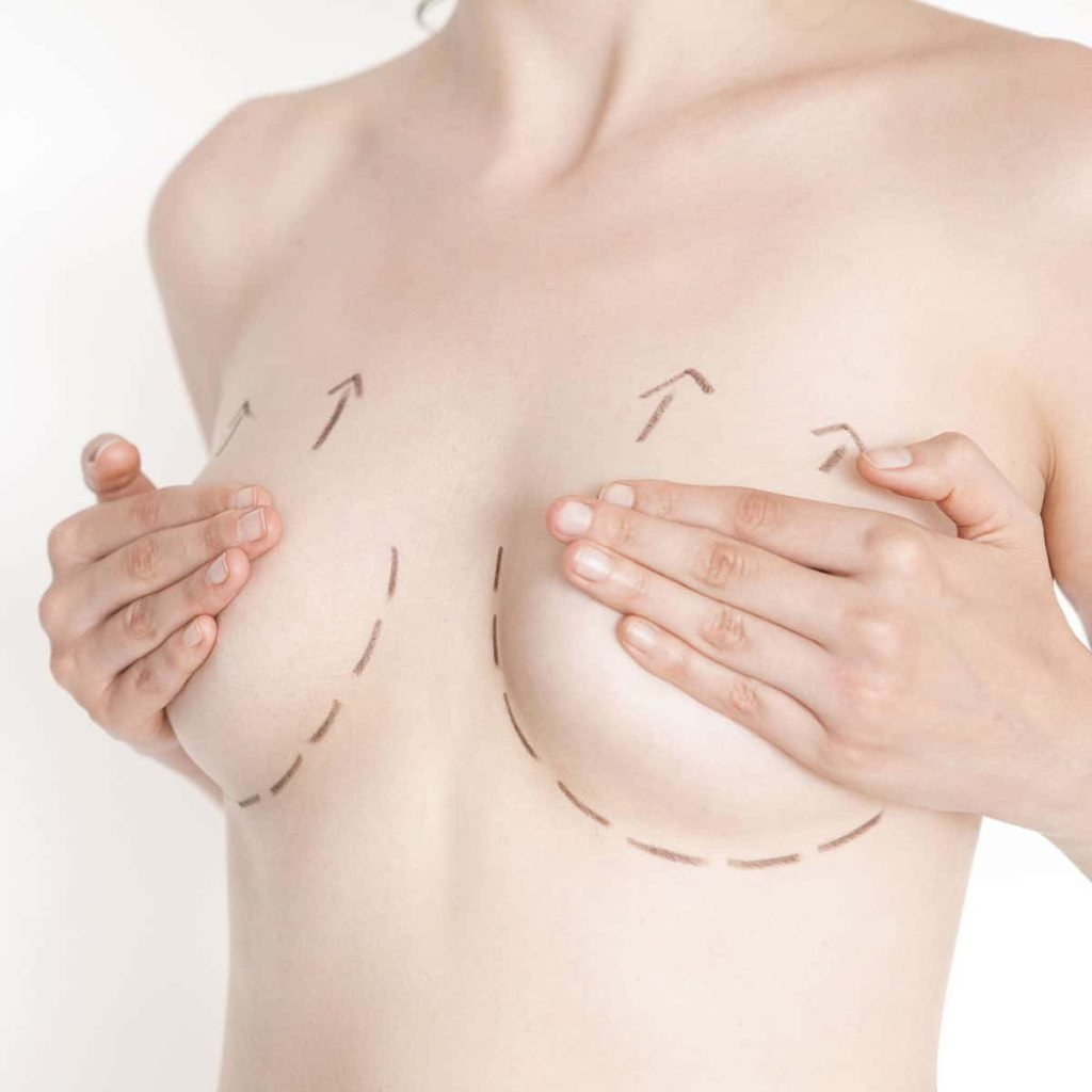 brystloeft